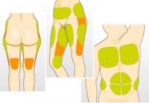 Areas a donde va la grasa en hombres y mujeres